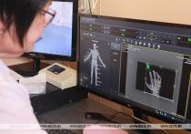 В Чашникской больнице установили новый рентгенодиагностический комплекс